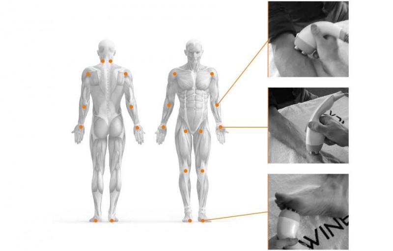 Tecar 4.0 Infografik Behandlungspunkte am Körper